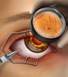 ooginjectie